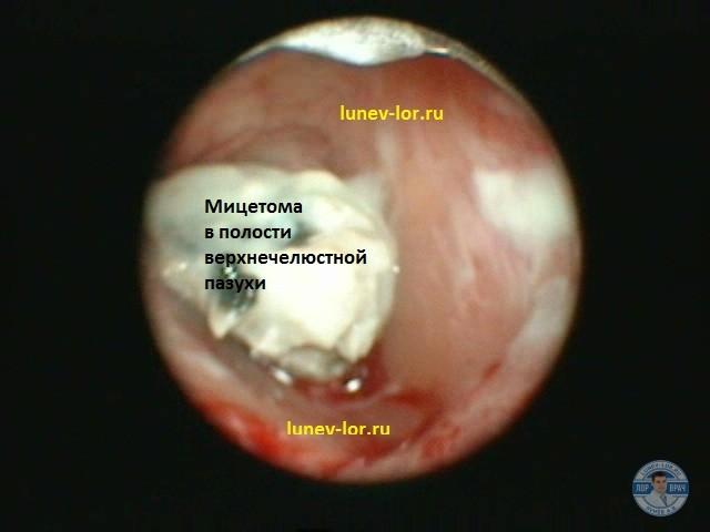 Хронический гайморит. Инородное тело верхнечелюстной пазухи.