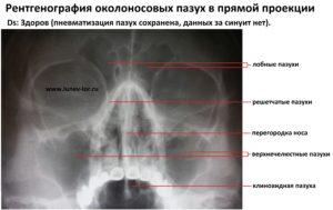рентгенография пазух носа, норма