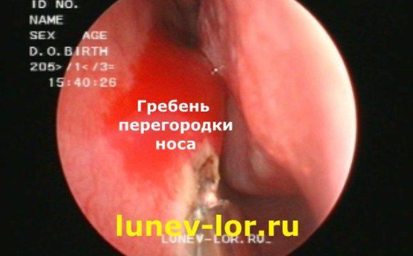 Искривление перегородки носа (септопластика или лазерная кристотомия)