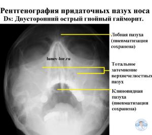 Гайморит. Синусит. Рентгенография придаточных пазух носа. Лечение гайморита без прокола.