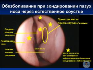 Зондирование придаточных пазух носа через соустье. Местная анестезия.