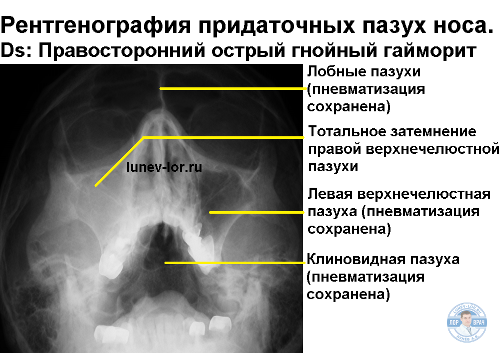 Синусит. Как подтвердить диагноз?
