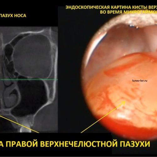 Эндоскопическая микрогайморотомия удаление кисты верхнечеюстной пазухи