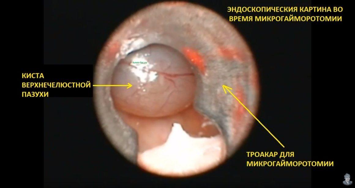 Микрогайморотомия, удаление кисты верхнечелюстной пазухи