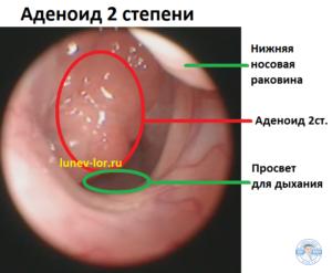 Аденоид 2 степени. Гипертрофия глоточной миндалины.