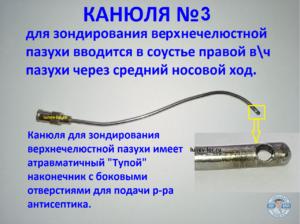 Зондирование и промывание верхнечелюстной пазухи через естественное соустье. Лечение гайморита без прокола.