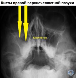 Киста верхнечелюстной пазухи. Рентгенография придаточных пазух носа.