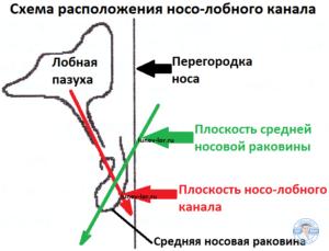 Схема расположения носо-лобного канала. Фронтит. Лечение гайморита без прокола. Зондирование лобной пазухи через естественное соустье.