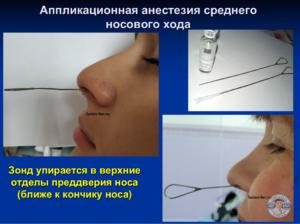 Зондирование пазух носа. Анестезия перед зондирование пазух носа.