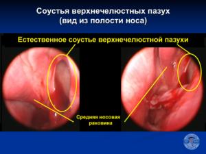 Соустья верхнечелюстных пазух. Синусит. Гайморит. Лечение гайморита без прокола.