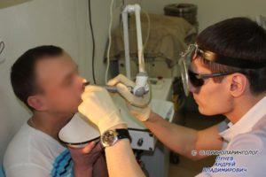 Пациенту с вазомоторным ринитом «нафтизиновая зависимость» выполняется СО2 лазерная деструкция нижних носовых раковин лазерным хирургическим аппаратом «Ланцет-1»