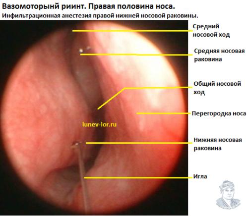 Вазомоторный ринит. Инфильтрационная анестезия перед лазерной деструкцией нижних носовых раковин.