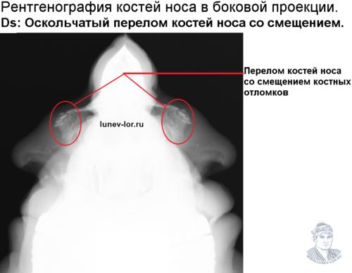 Перелом костей носа со смещением костных отломков. Рентгенография костей носа.