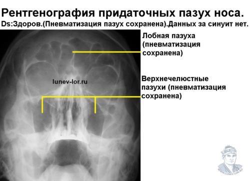 Гайморит. Синусит. Рентгенография придаточных пазух носа.