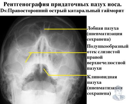 Правосторонний гайморит. Синусит. Рентгенография придаточных пазух носа.