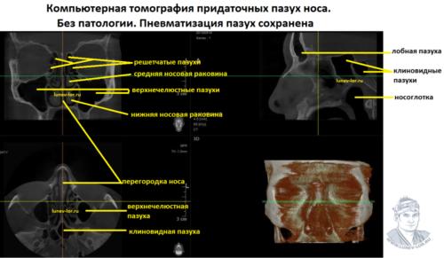 Компьютерная томография придаточных пазух носа здорового человека.
