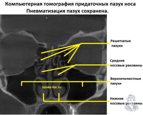 Компьютерная томография пазух носа без патологии.