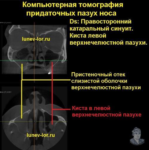 Киста левой верхнечелюстной пазухи. Правосторонний катаральный гайморит. Синусит. Гайморит. КТ придаточных пазух носа.