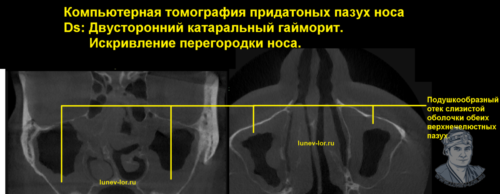 Синусит. Катаральный гайморит. Компьютерная томография придаточных пазух носа.