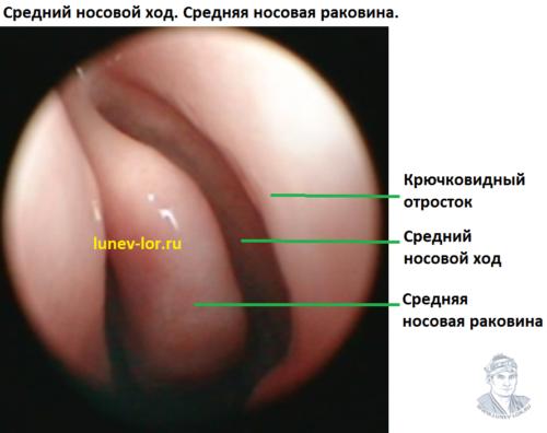Средний носовой ход. Средняя носовая раковина. Крючковидный отросток.