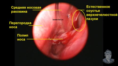 Естественное соустье верхнечелюстной пазухи. Лечение гайморита без прокола. Зондирование пазух носа.