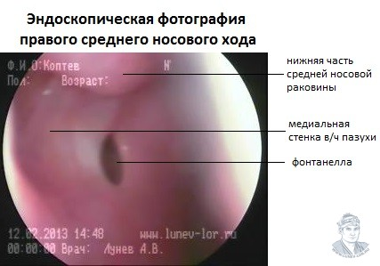 фонтанелла (сообщение с полостью носа) правой верхнечелюстной пазухи