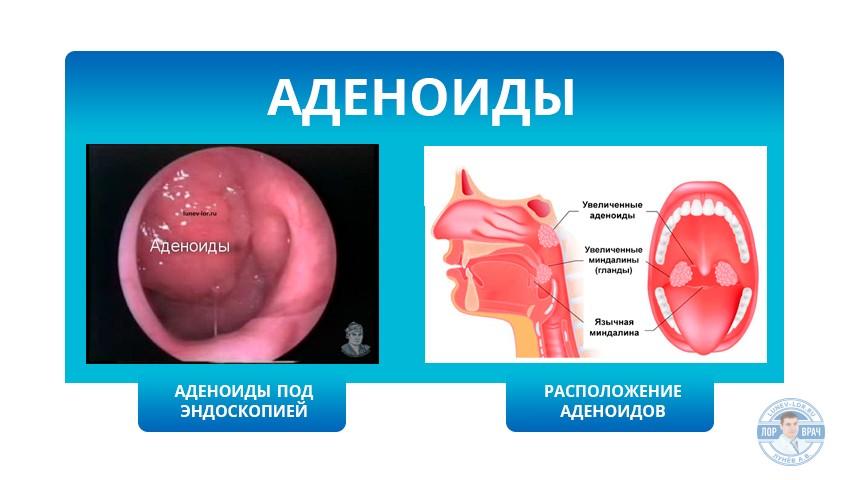 аденоиды расположение картинка