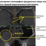 Рентген или КТ