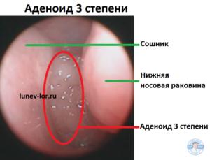 Аденоид 3 степени. Гипертрофия глоточной миндалины.
