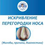 Искривление перегородки носа (жалобы, причины, диагностика)