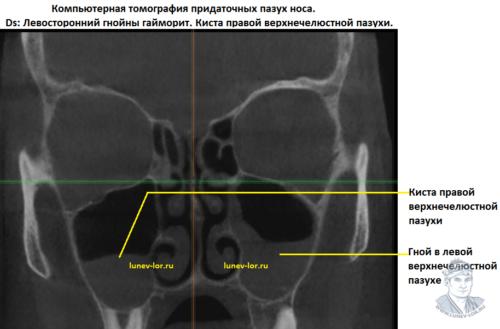 Синусит. Гнойный гайморит. Компьютерная томография придаточных пазух носа.