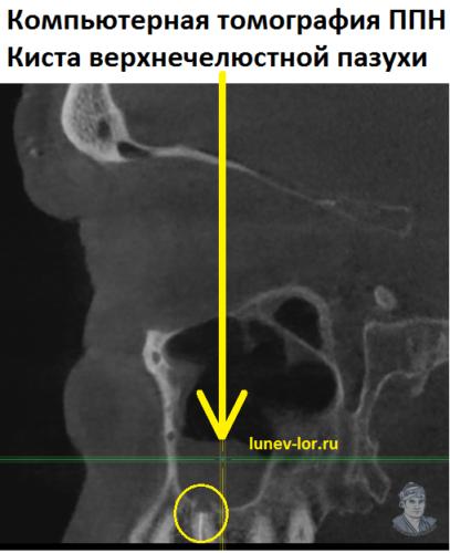 Киста правой верхнечелюстной пазухи. Компьютерная томография.