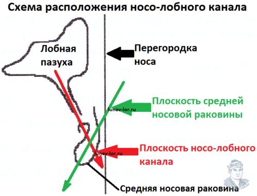 Схема расположения носо-лобного канала. Фронтит. Зондирование лобной пазухи через естественное соустье.