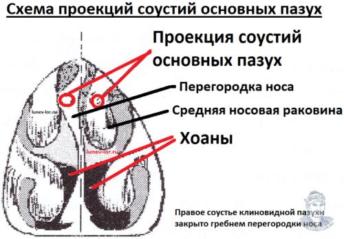Схема проекций соустий клиновидных пазух. Сфеноидит. Зондирование клиновидной пазухи через естественное соустье.